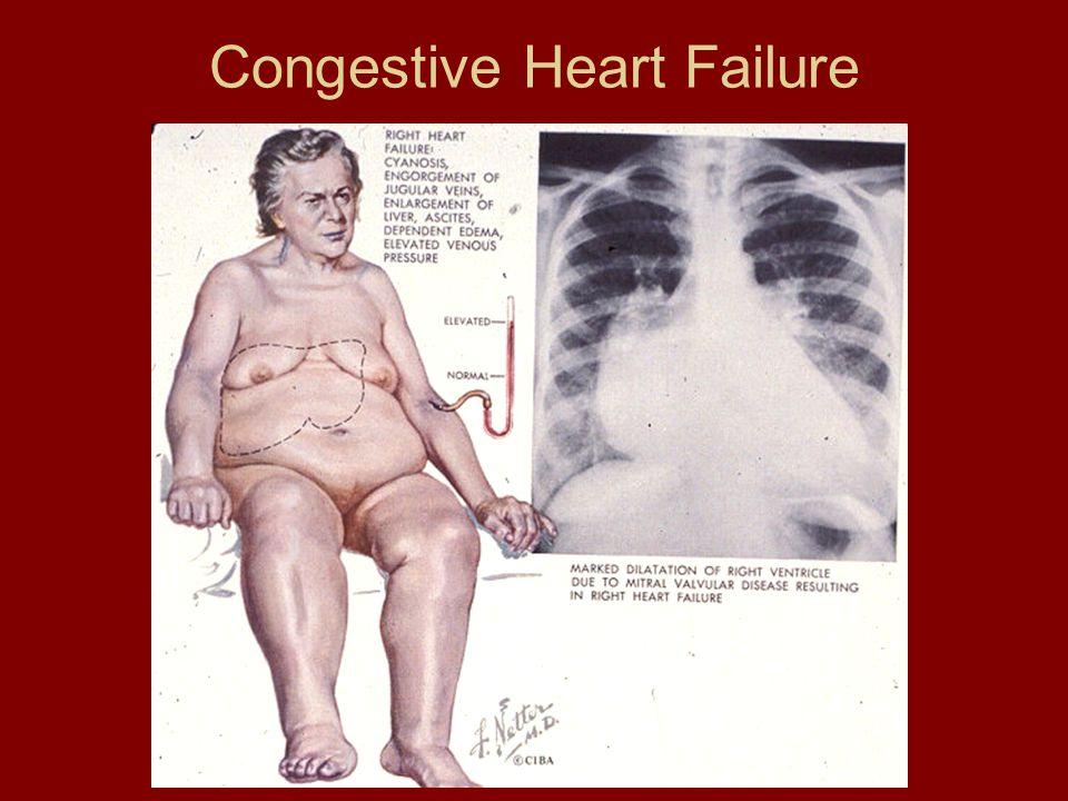 Congestive Heart Failure