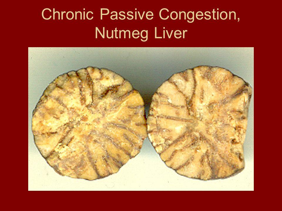 Chronic Passive Congestion, Nutmeg Liver