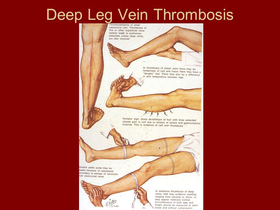 Deep Leg Vein Thrombosis
