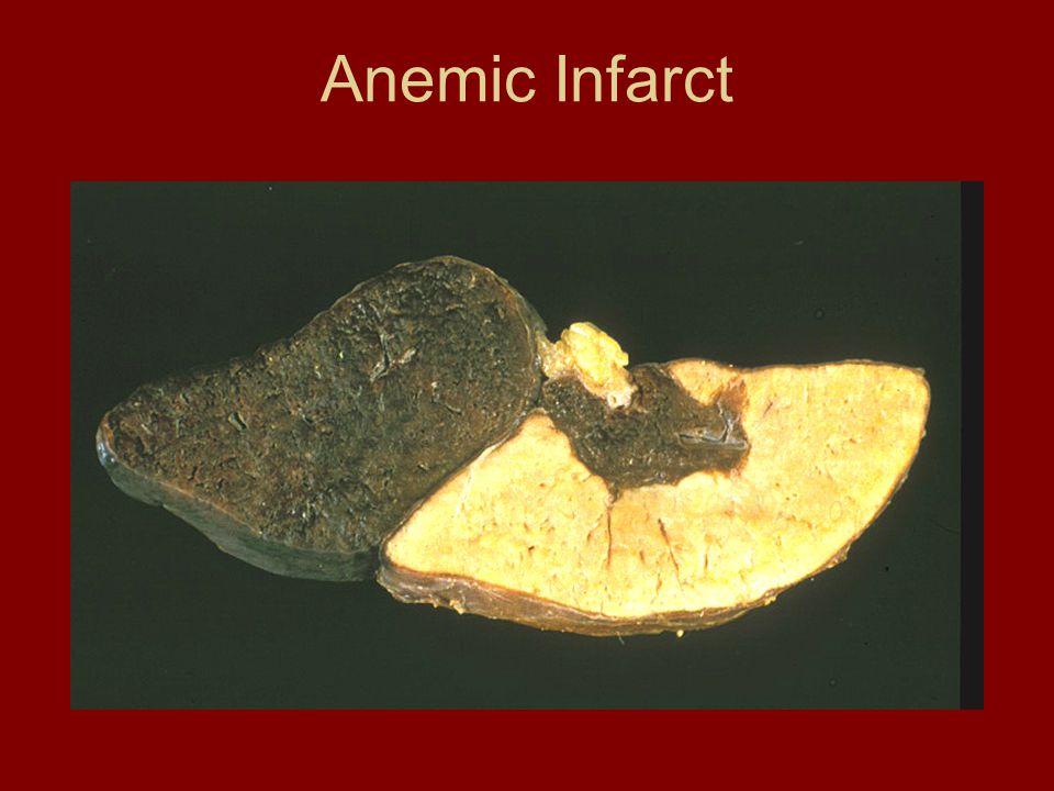 Anemic Infarct