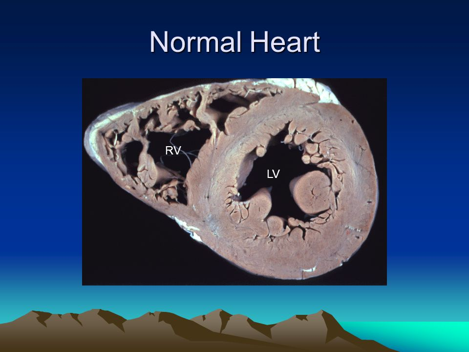 Normal Heart LV RV