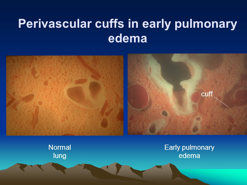 Perivascular cuffs in early pulmonary edema