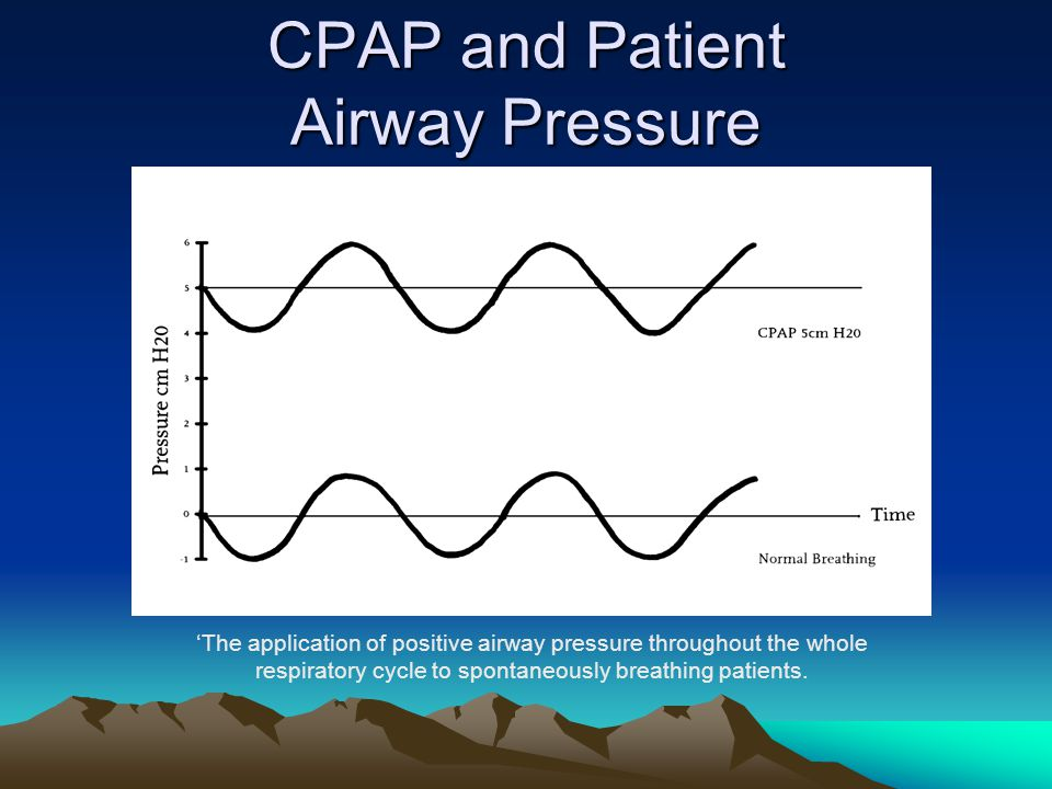 CPAP and Patient Airway Pressure