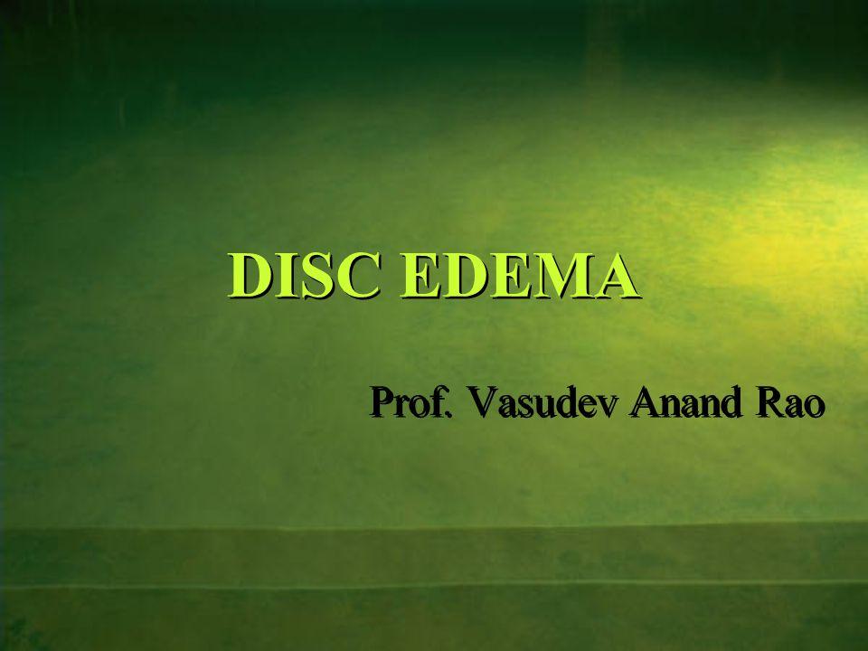 DISC EDEMA Prof. Vasudev Anand Rao