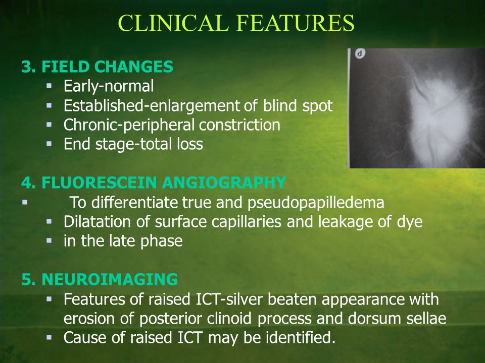 CLINICAL FEATURES 3. FIELD CHANGES Early-normal