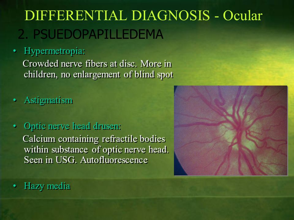 DIFFERENTIAL DIAGNOSIS - Ocular