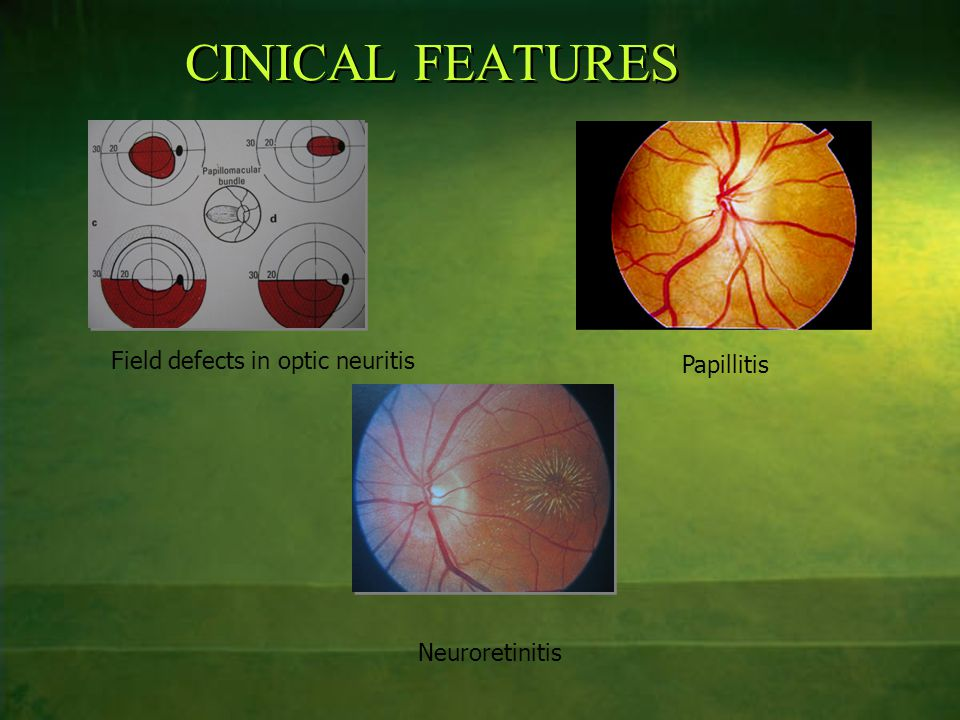 CINICAL FEATURES Field defects in optic neuritis Papillitis