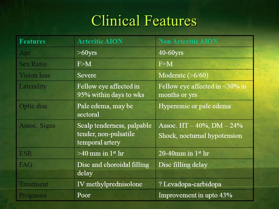 Clinical Features Features Arteritic AION Non Arteritic AION Age