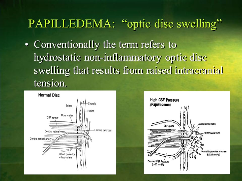 PAPILLEDEMA: optic disc swelling