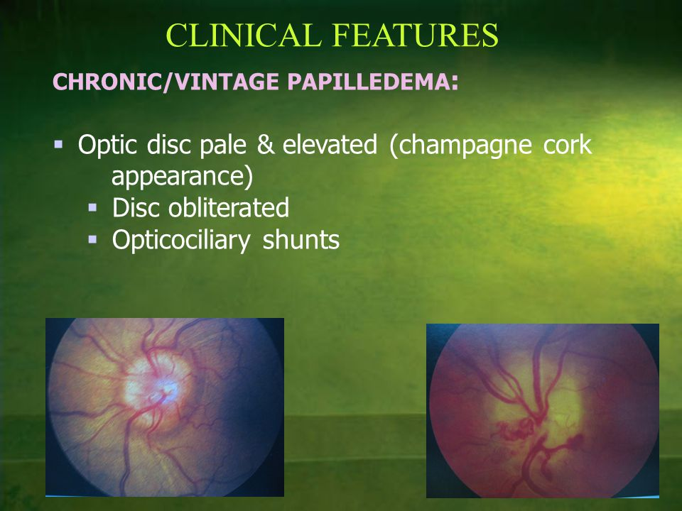 CLINICAL FEATURES Optic disc pale & elevated (champagne cork