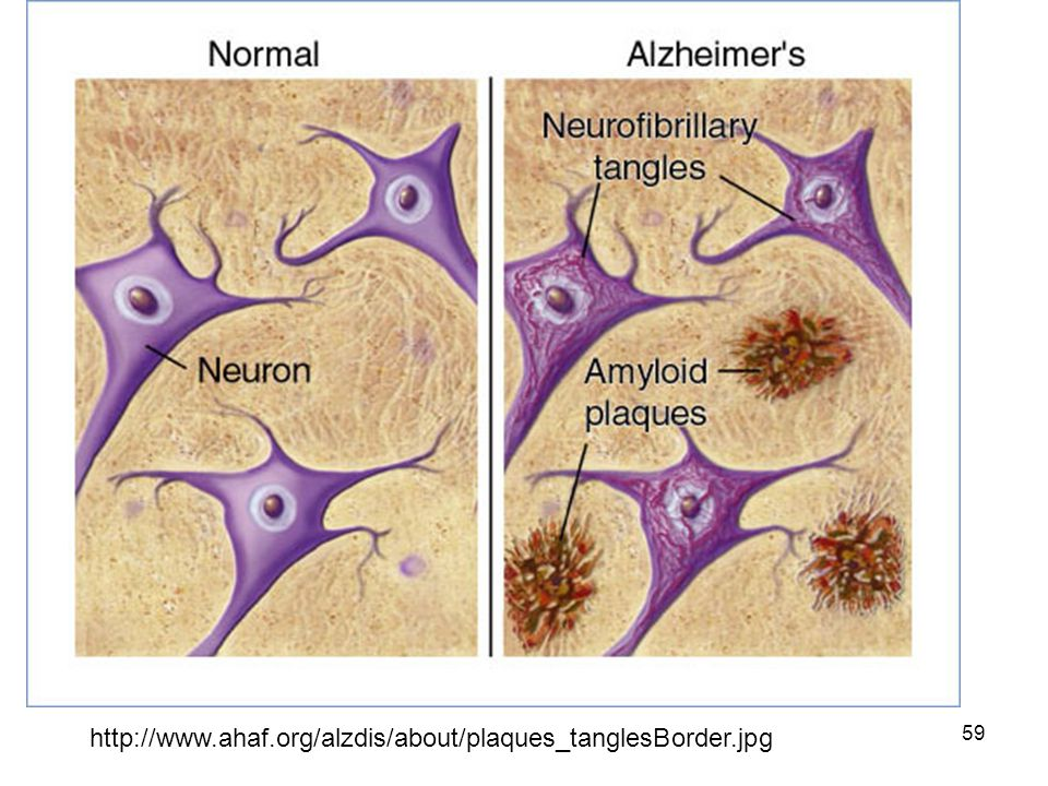 http://www.ahaf.org/alzdis/about/plaques_tanglesBorder.jpg