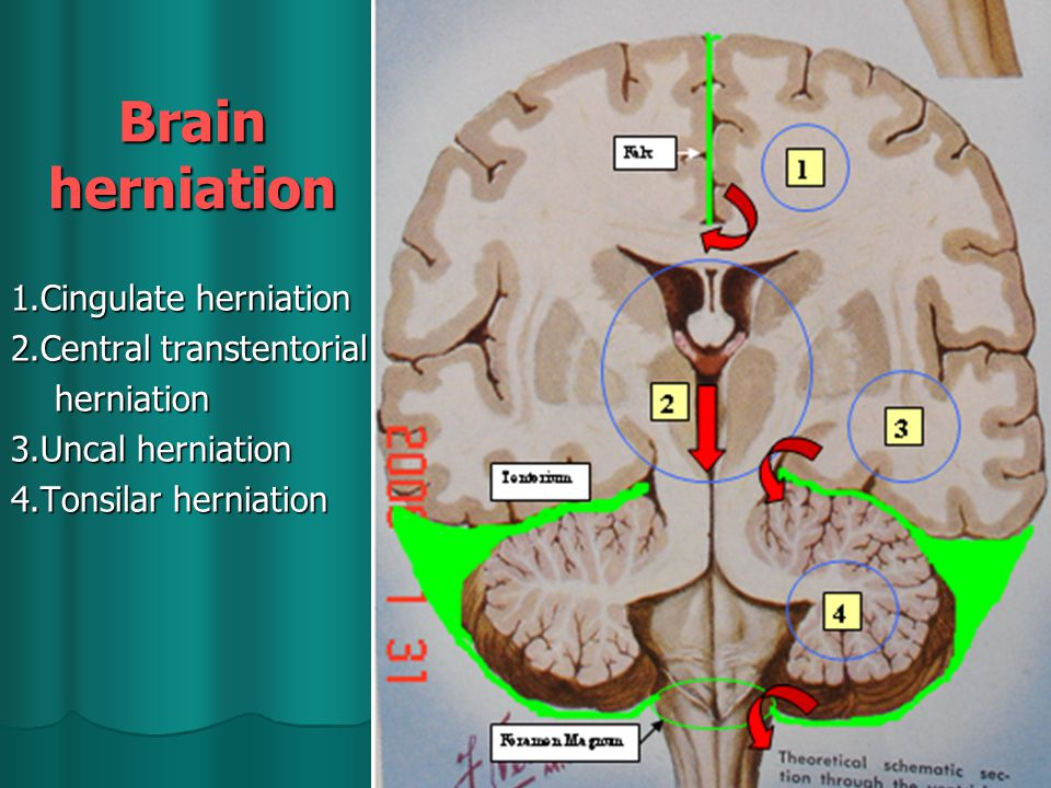 Brain herniation 1.Cingulate herniation 2.Central transtentorial