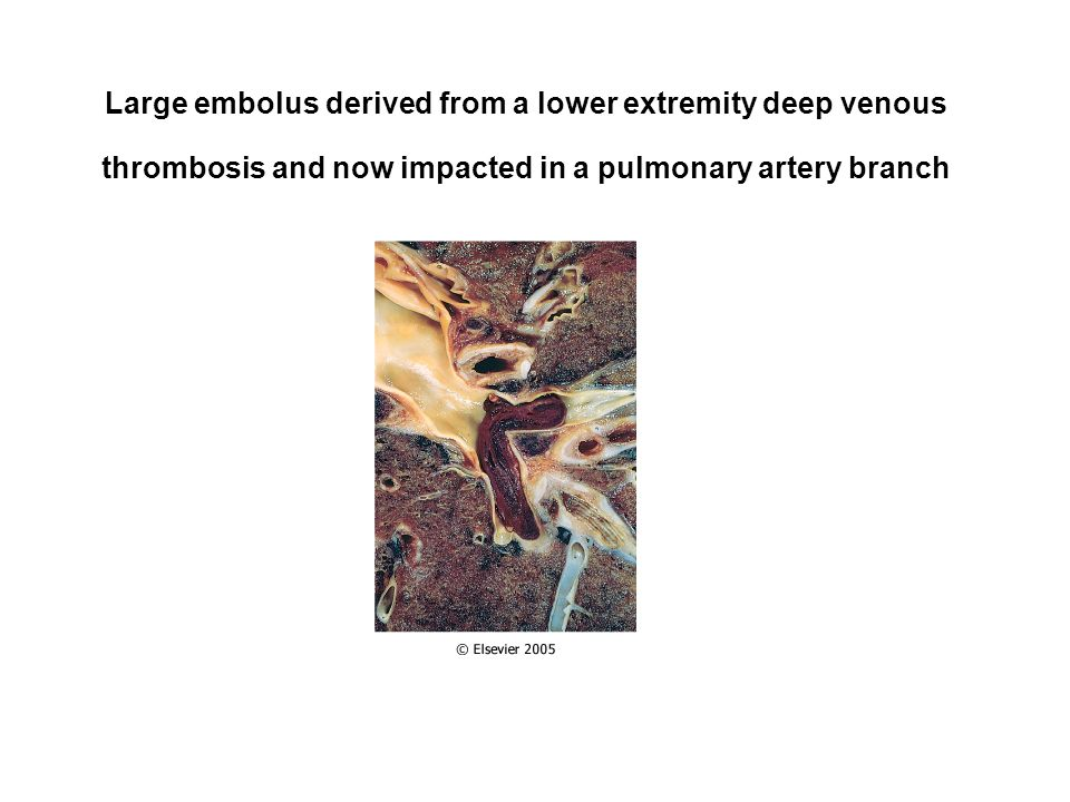 Large embolus derived from a lower extremity deep venous thrombosis and now impacted in a pulmonary artery branch