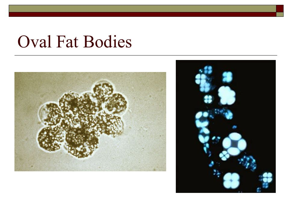 Oval Fat Bodies