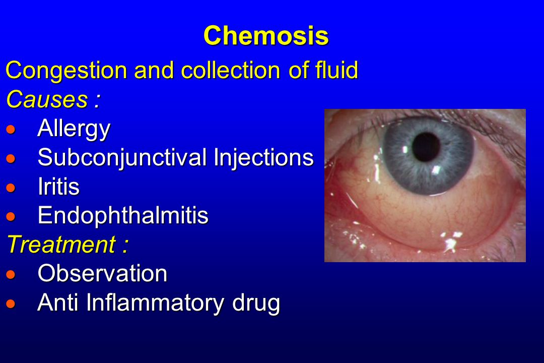 Chemosis Congestion and collection of fluid Causes : Allergy