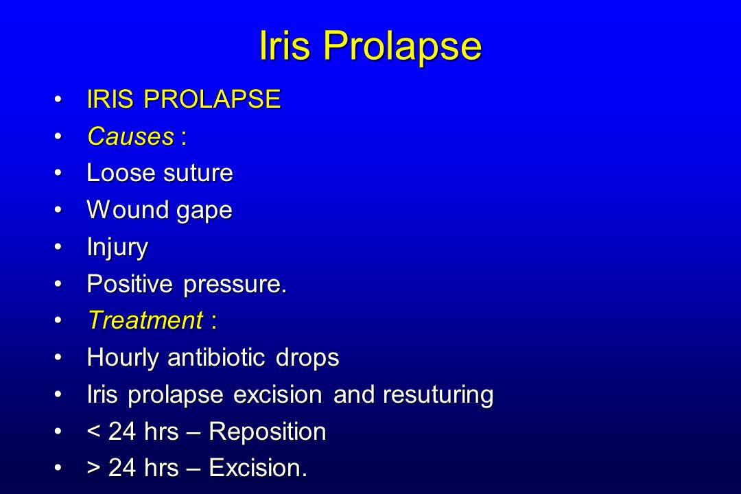 Iris Prolapse IRIS PROLAPSE Causes : Loose suture Wound gape Injury