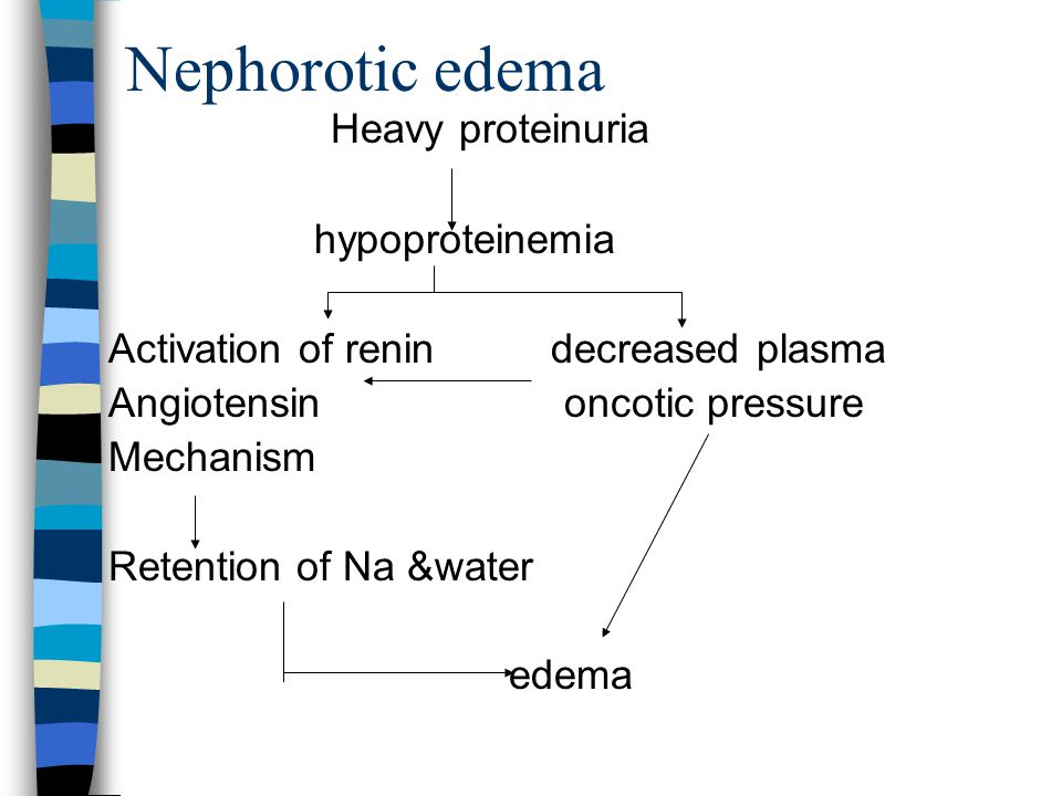 Nephorotic edema Heavy proteinuria hypoproteinemia
