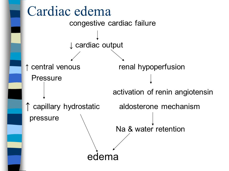 Cardiac edema activation of renin angiotensin