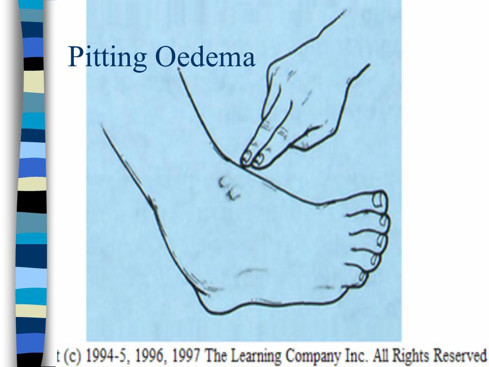 Pitting Oedema