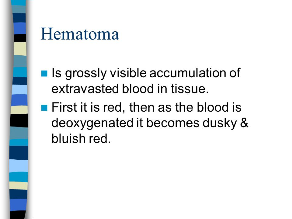 Hematoma Is grossly visible accumulation of extravasted blood in tissue.
