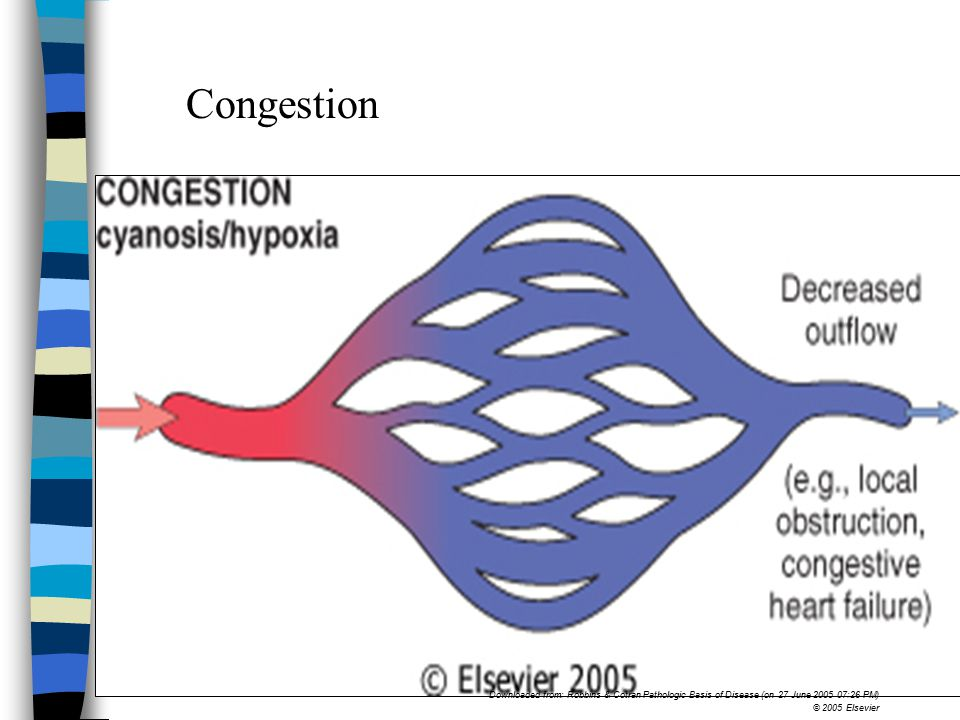 Congestion In congestion, diminished outflow leads to a capillary bed swollen with deoxygenated venous blood and resulting in cyanosis.