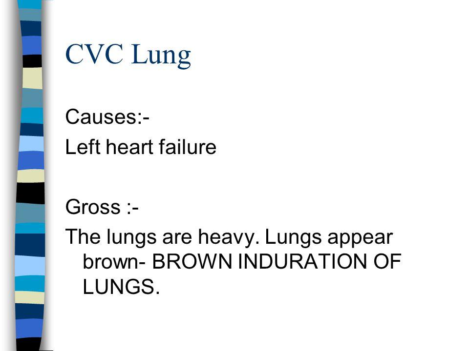 CVC Lung Causes:- Left heart failure Gross :-