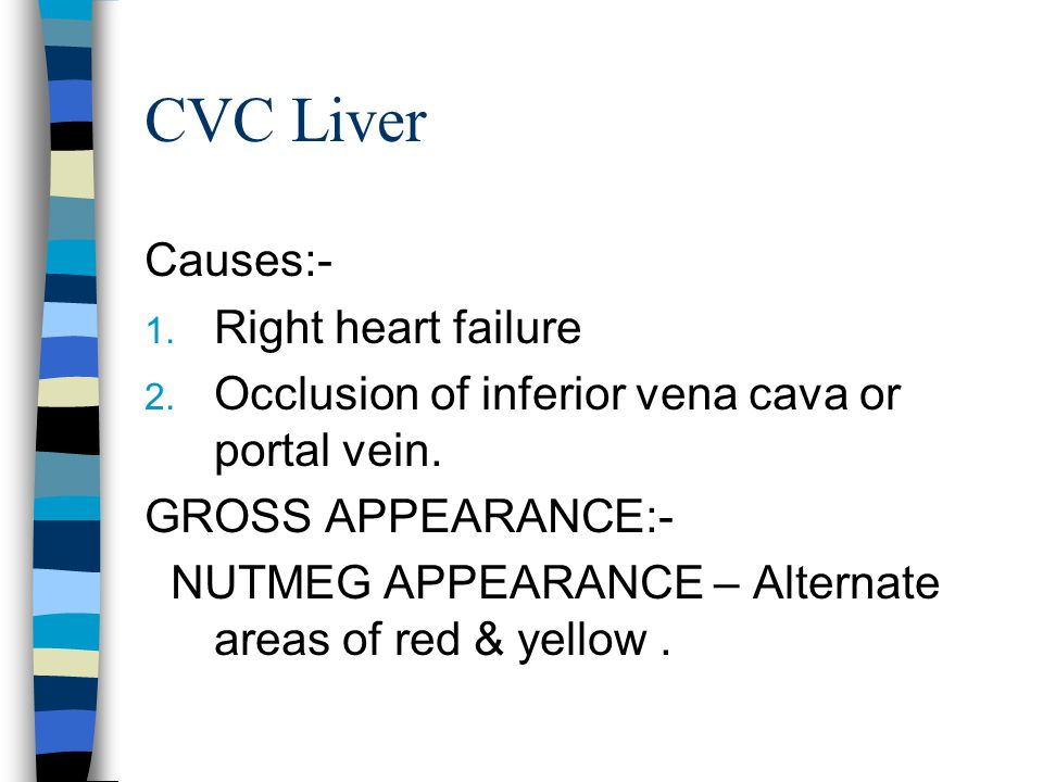 CVC Liver Causes:- Right heart failure