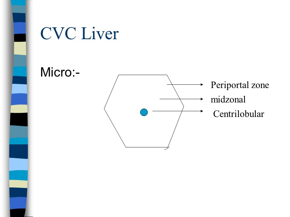 CVC Liver Micro:- Periportal zone midzonal Centrilobular