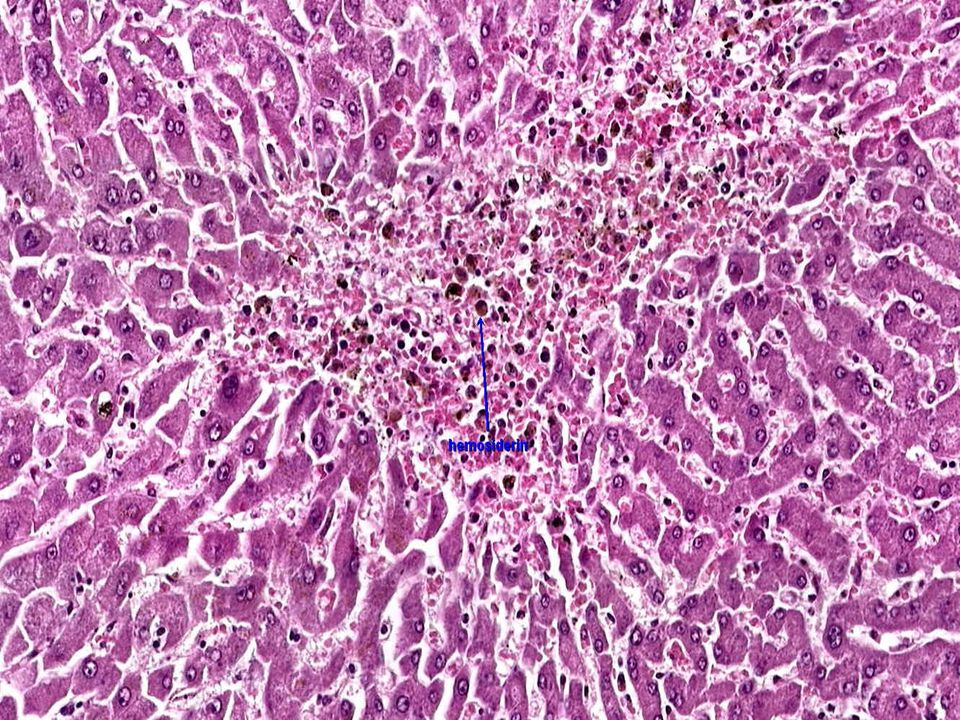 This view shows a close up of hemorrhagic central necrosis