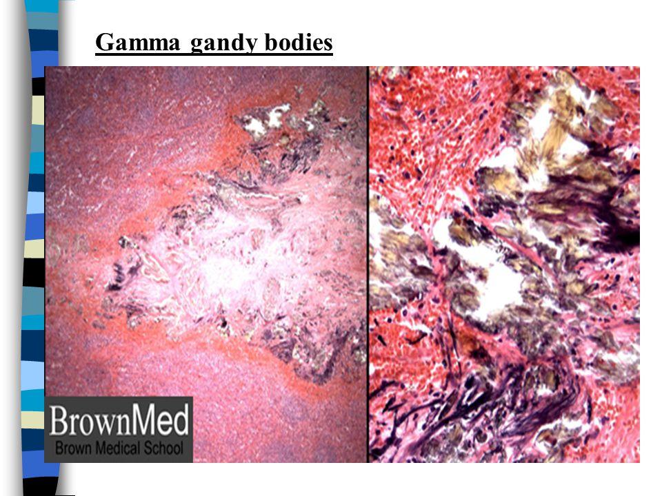 Gamma gandy bodies