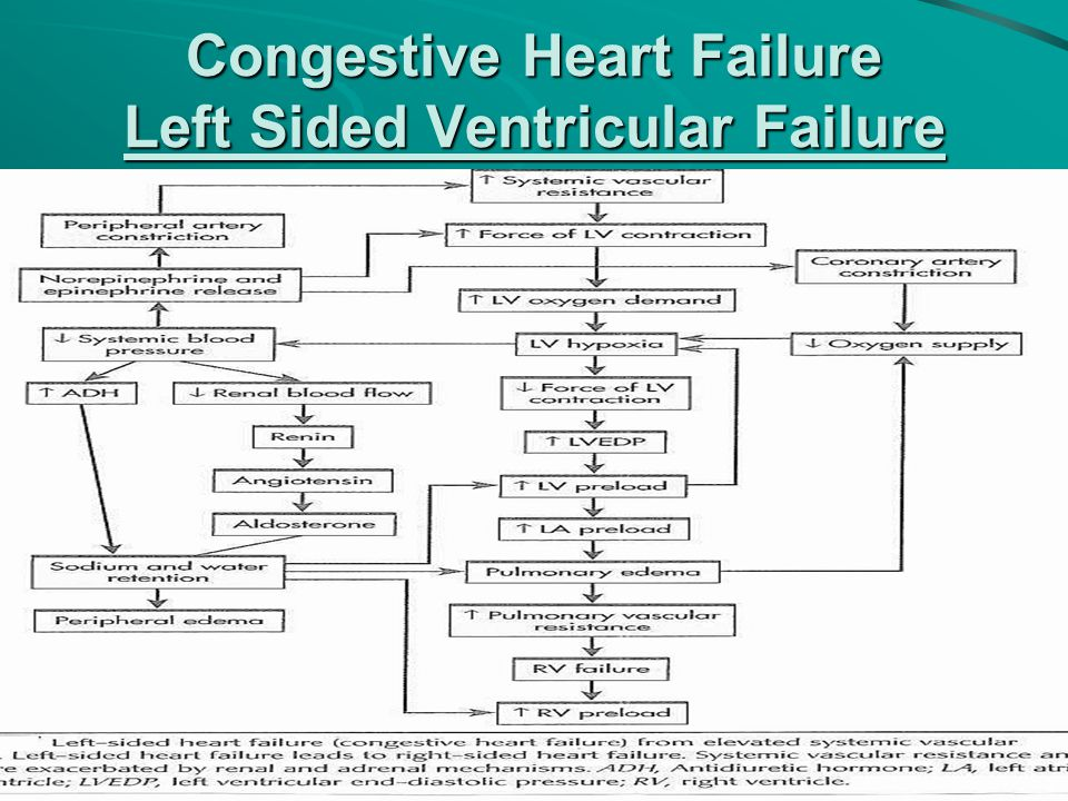 Congestive Heart Failure Left Sided Ventricular Failure
