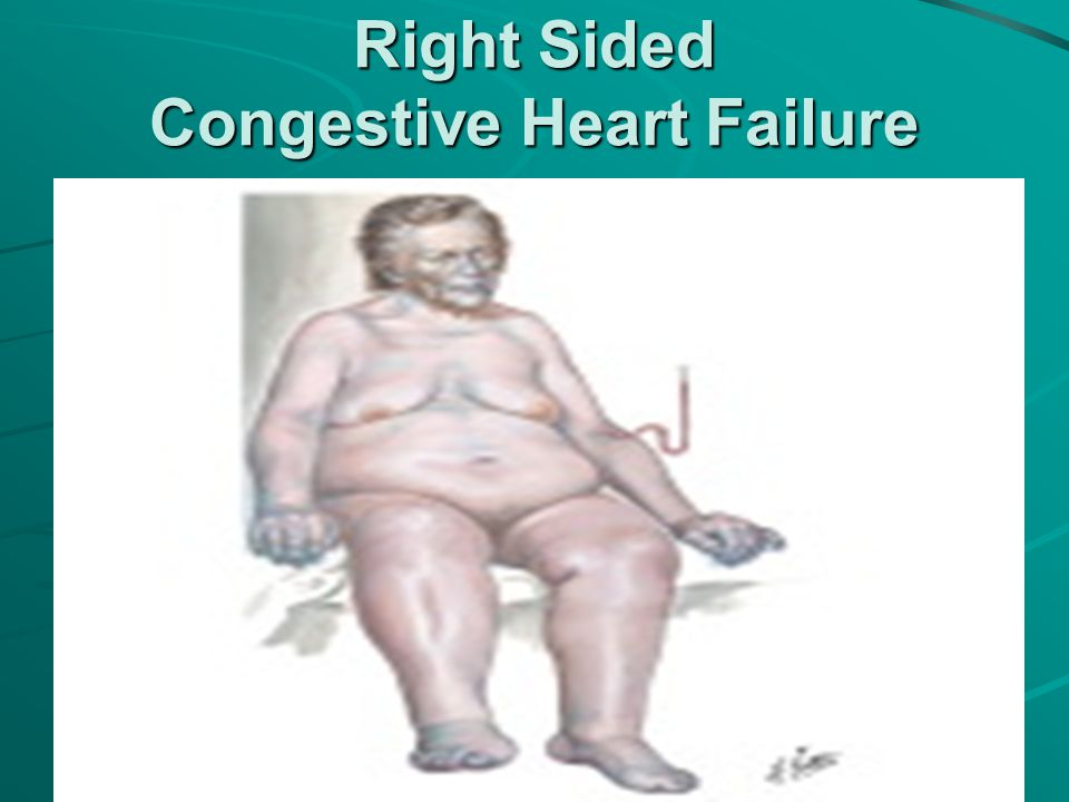 Right Sided Congestive Heart Failure