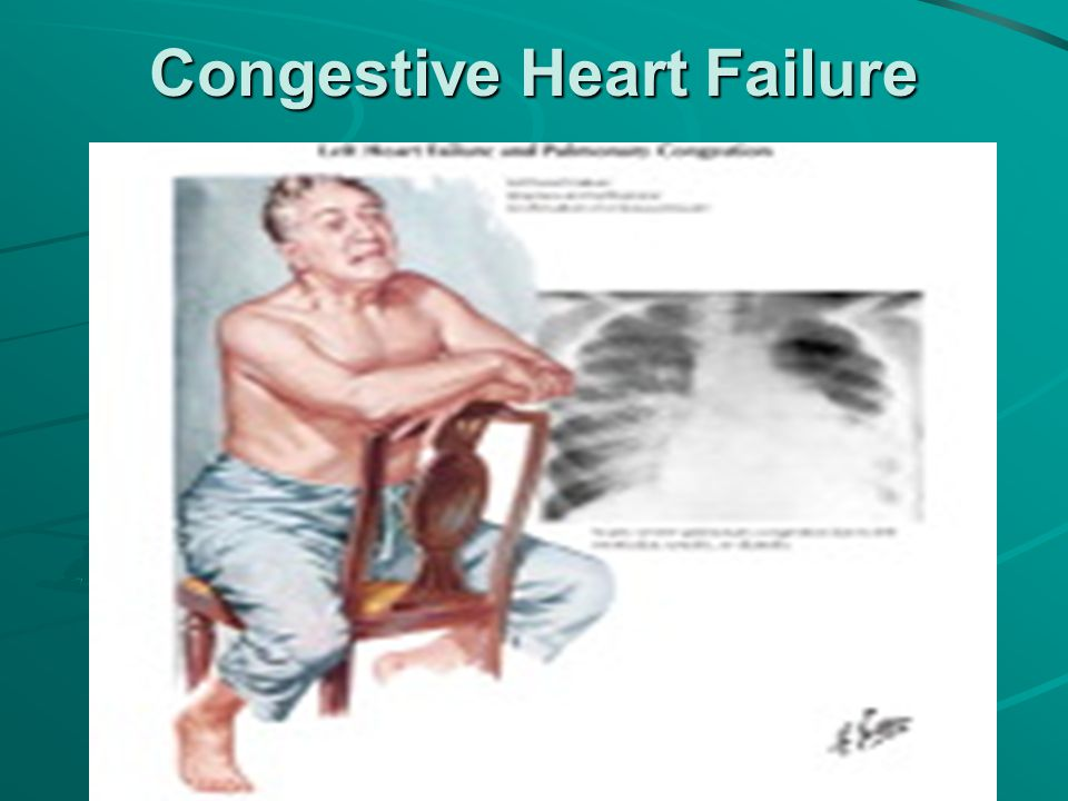 Clinical case studies in heart failure management