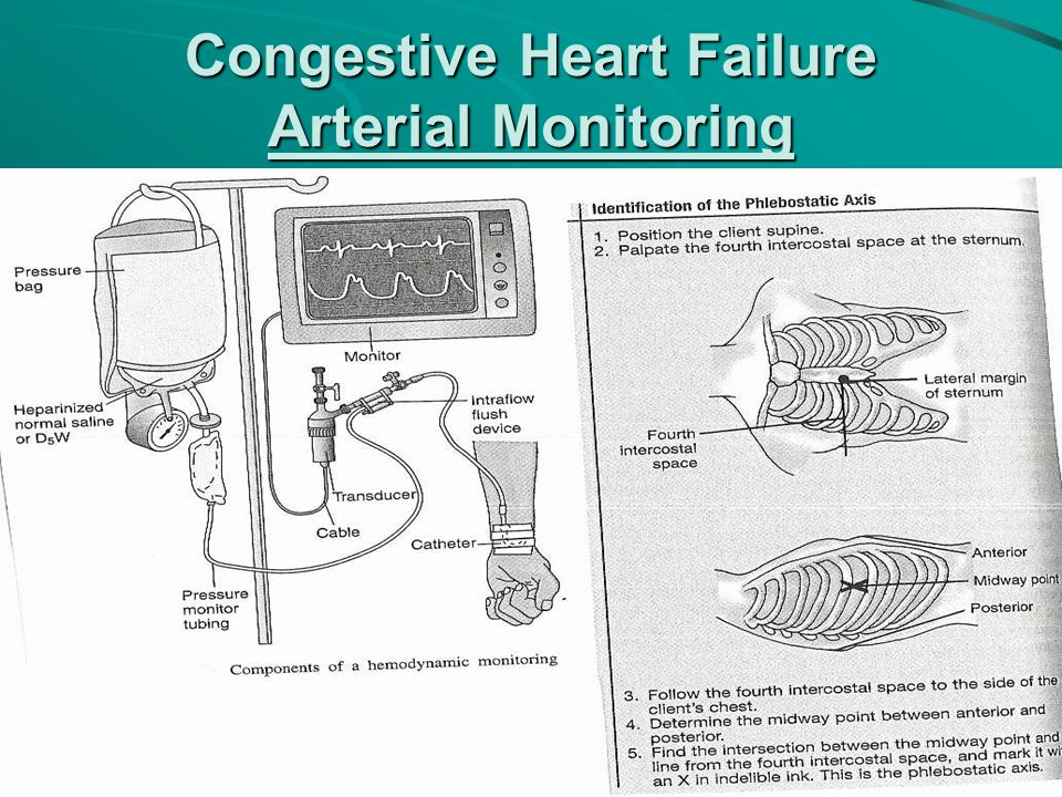 Congestive Heart Failure Arterial Monitoring
