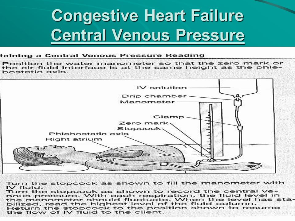 Congestive Heart Failure Central Venous Pressure