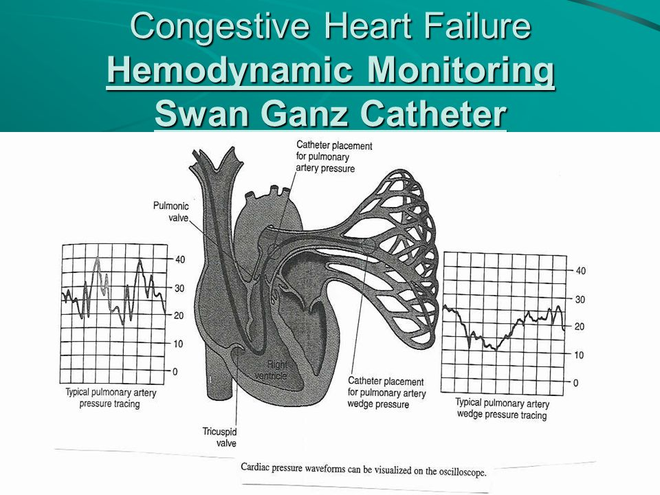 Congestive Heart Failure Hemodynamic Monitoring Swan Ganz Catheter