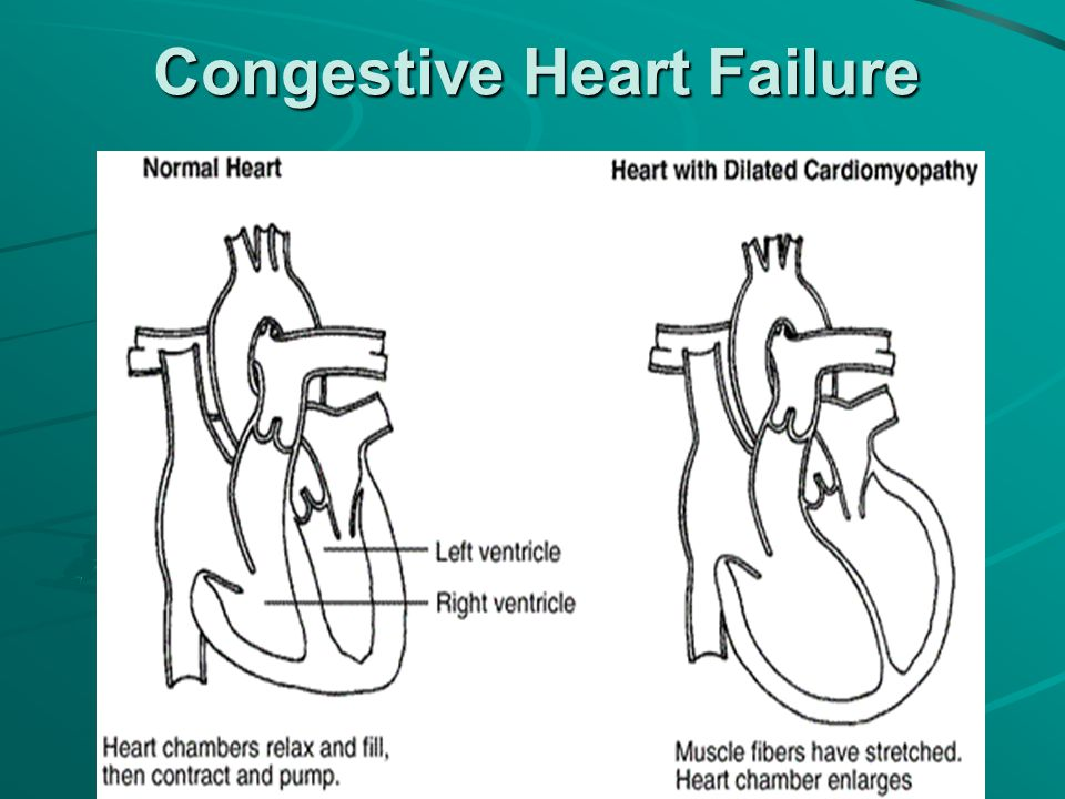 Congested heart failure case study