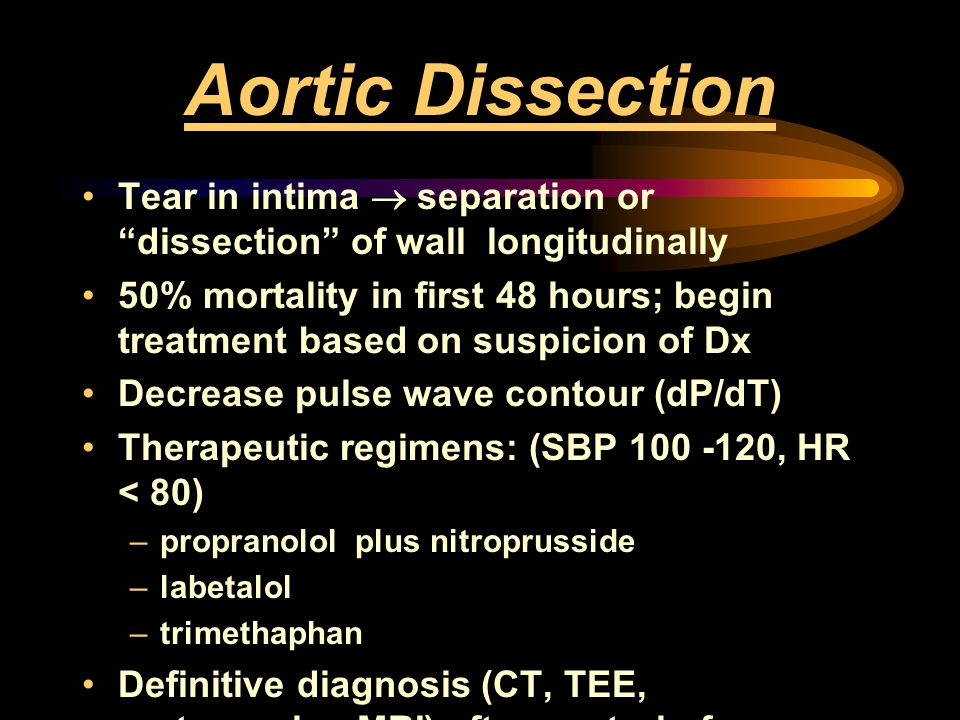 Aortic Dissection Tear in intima ® separation or dissection of wall longitudinally.