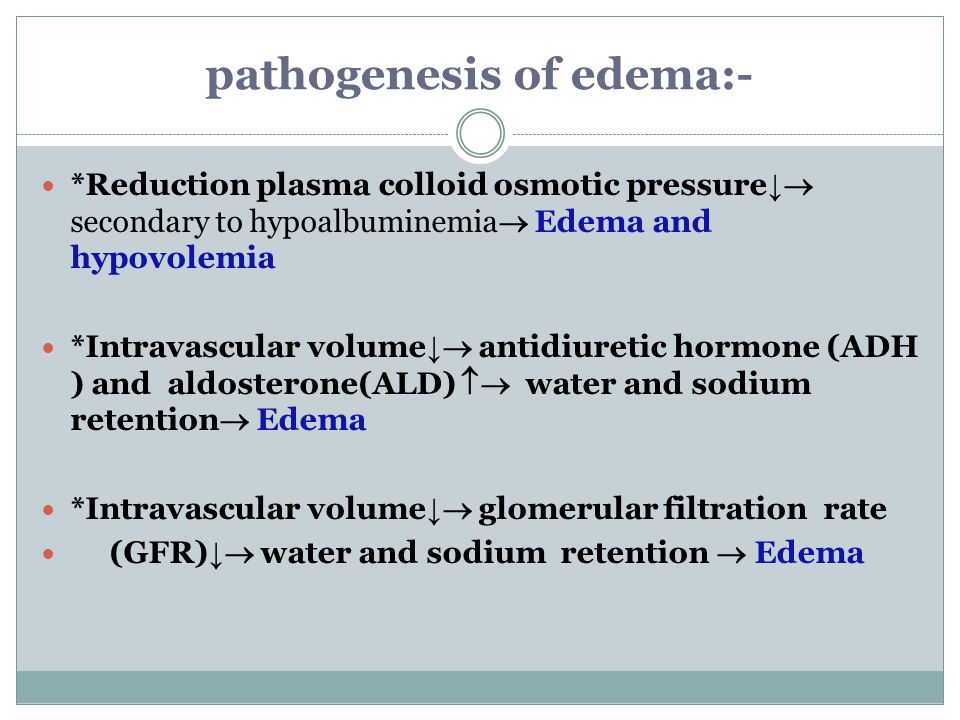 pathogenesis of edema:-