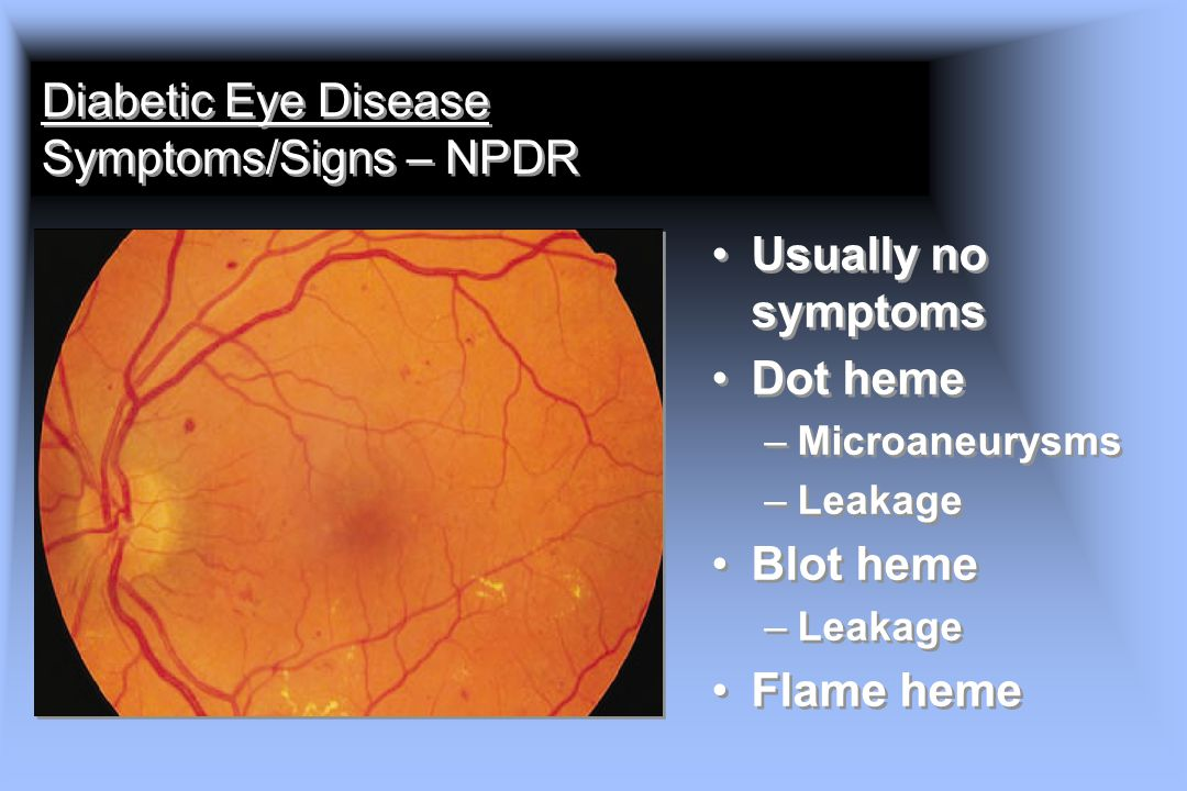 Diabetic Eye Disease Symptoms/Signs – NPDR