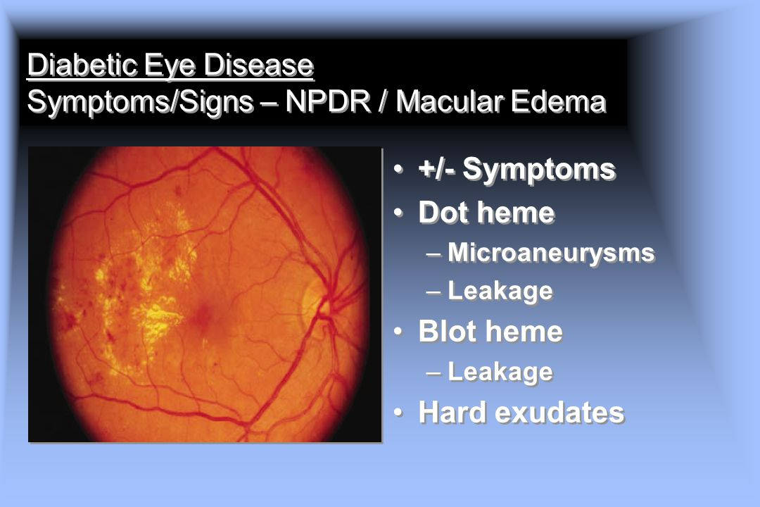 Diabetic Eye Disease Symptoms/Signs – NPDR / Macular Edema