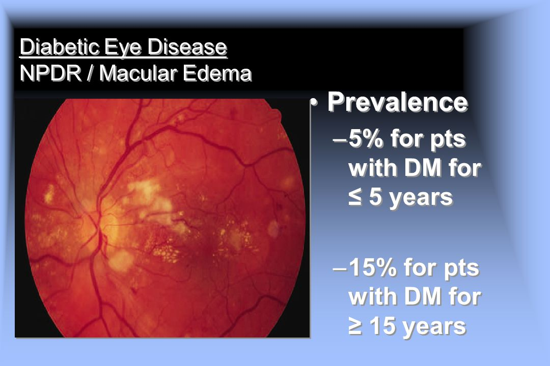 Diabetic Eye Disease NPDR / Macular Edema