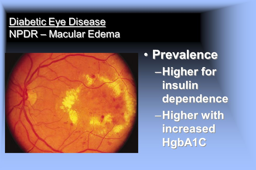 Diabetic Eye Disease NPDR – Macular Edema