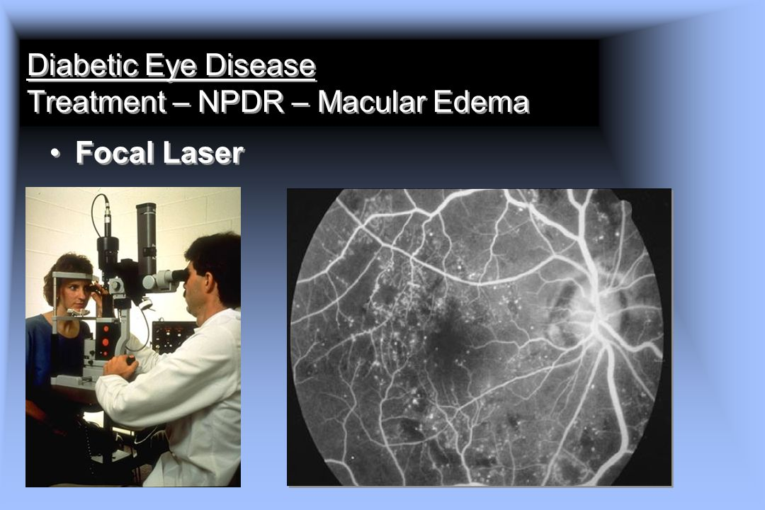 Diabetic Eye Disease Treatment – NPDR – Macular Edema