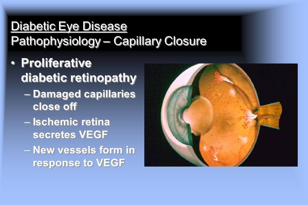 Diabetic Eye Disease Pathophysiology – Capillary Closure