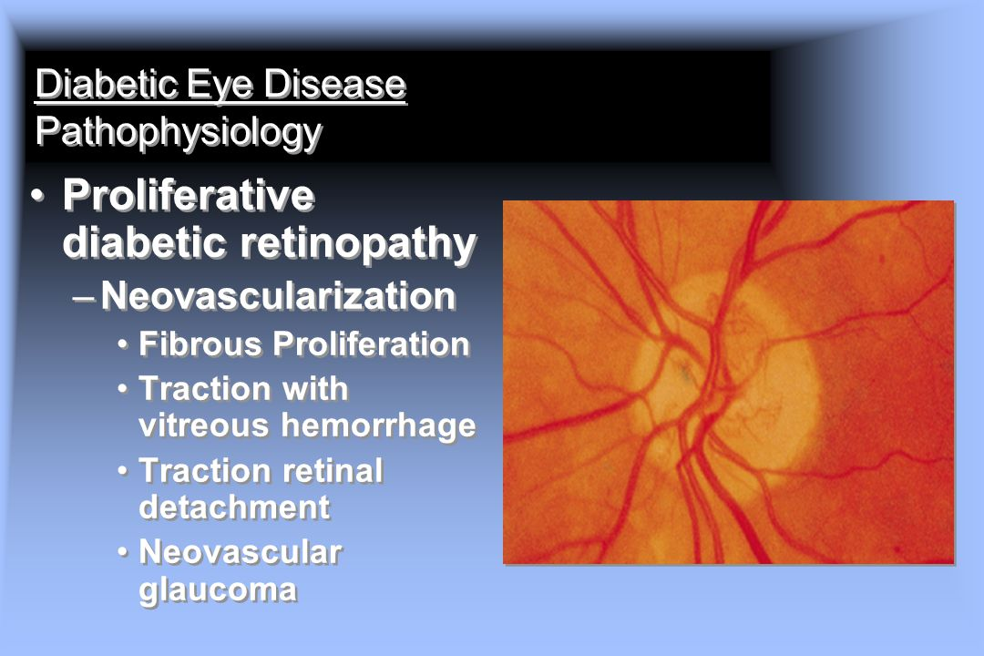 Diabetic Eye Disease Pathophysiology