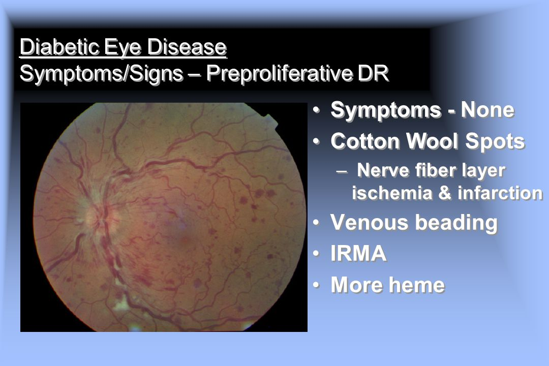 Diabetic Eye Disease Symptoms/Signs – Preproliferative DR