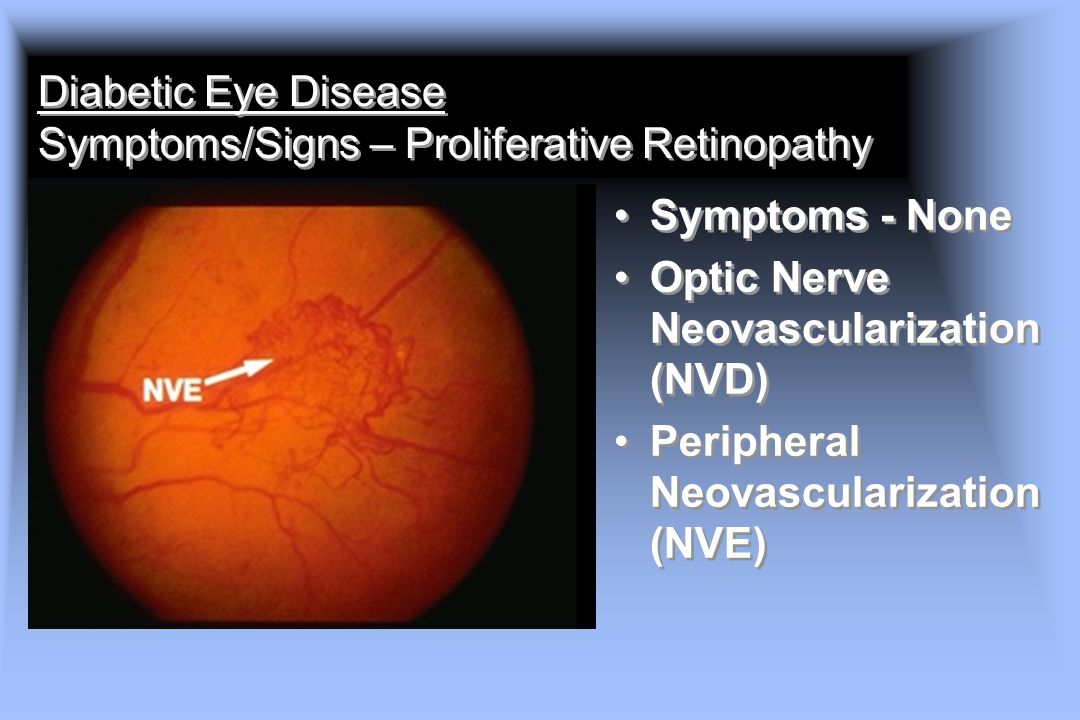 Diabetic Eye Disease Symptoms/Signs – Proliferative Retinopathy