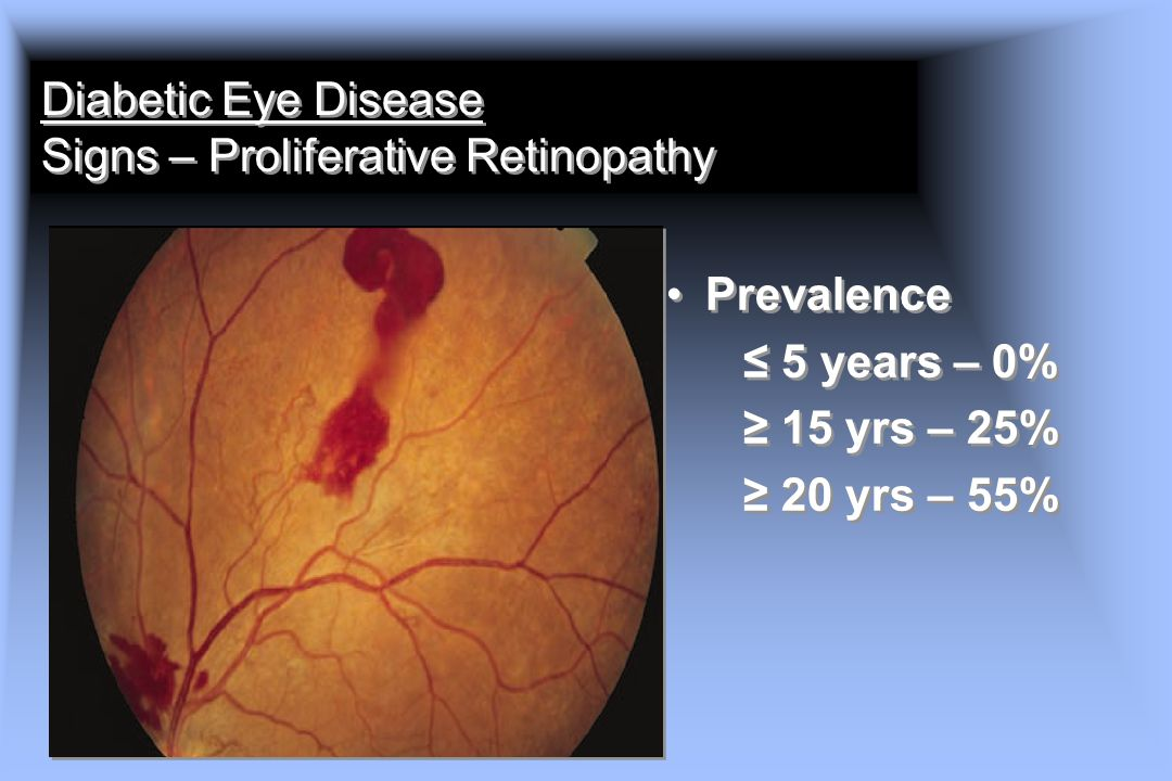 Diabetic Eye Disease Signs – Proliferative Retinopathy