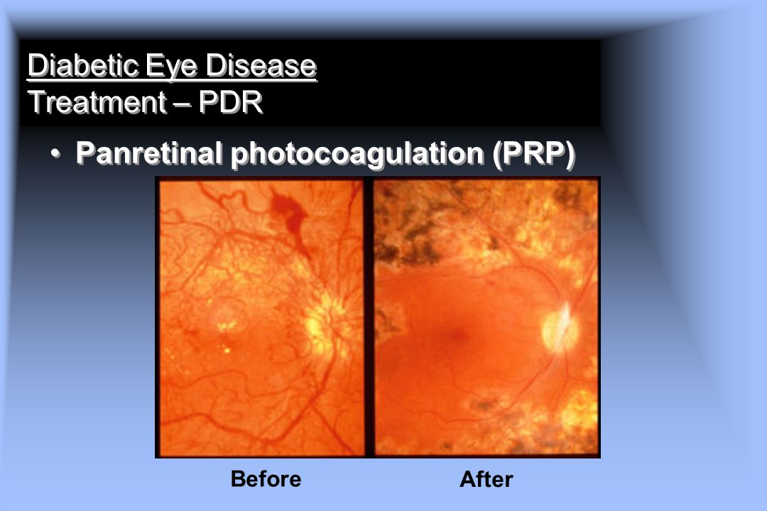 Diabetic Eye Disease Treatment – PDR